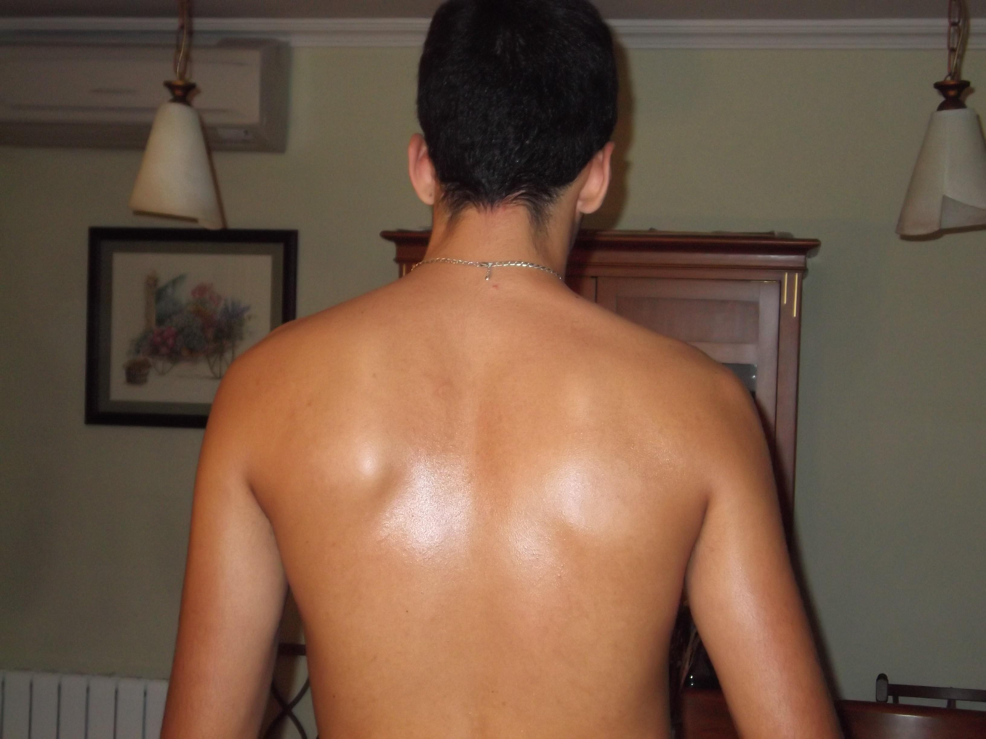 Como librarse de las manchas de pigmento sobre la persona y el cuello